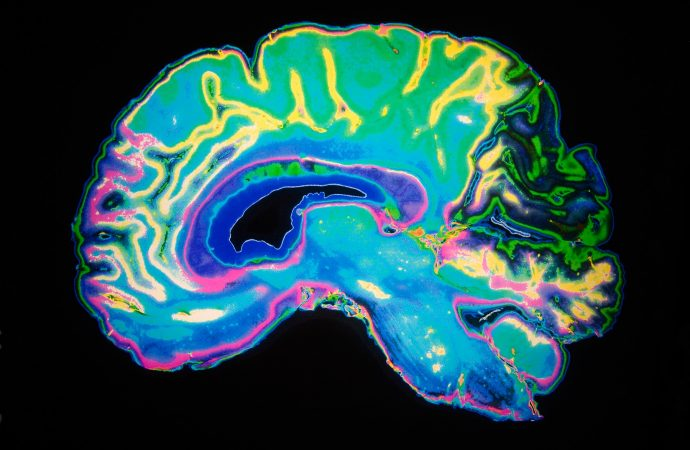An ALS Drug Shows Early Promise Against Alzheimer's