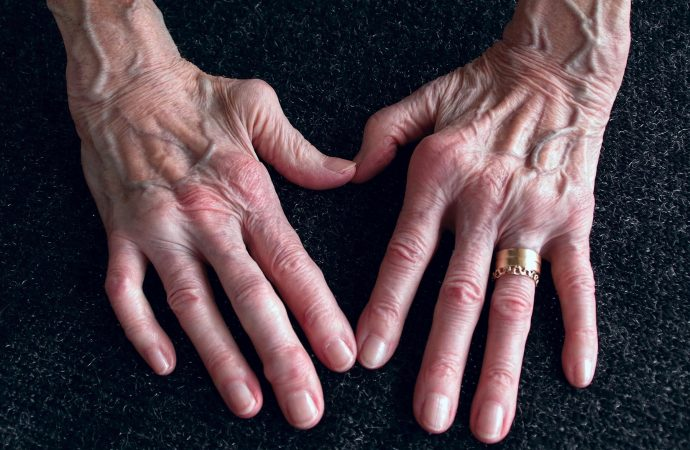 Secondhand Smoke May Raise Kids' Rheumatoid Arthritis Risk