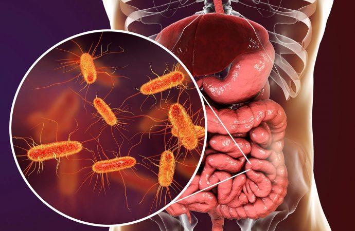 Too Many Antibiotics Might Raise Colon Cancer Risk