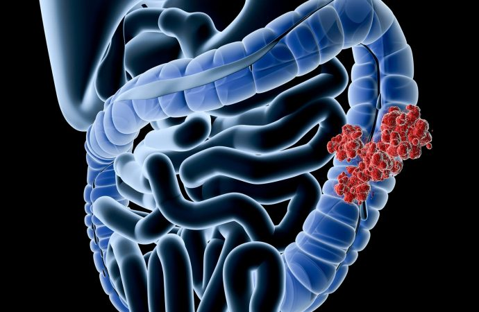 Colon Cancer, Often Avoidable, Hits Black Men, the Young More